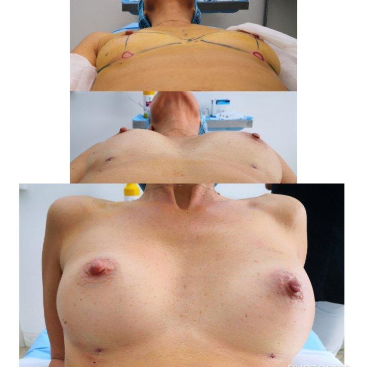 Un seno perfetto 3